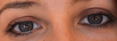 lentile-de-contact-colorate-Adore-Bi-Tone-Blue pe ochi naturali caprui