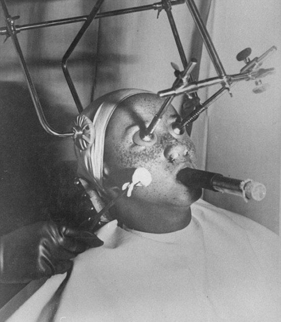 dioxid de carbon in proceduri de cosmetice din trecut