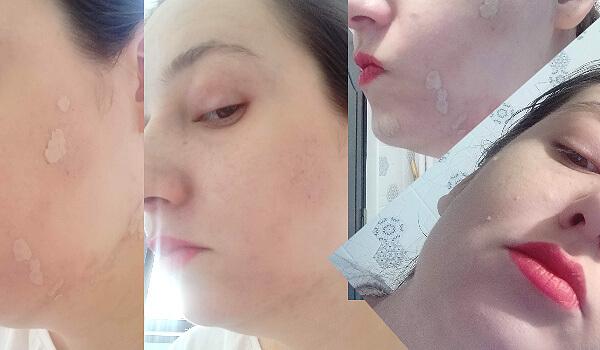 câteva mostre de acoperire și swatches pe față pentru concealer Shiseido Synchro Skin Self-Refreshing review_nuanța Fair_TresClair103