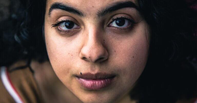 cum tratezi și maschezi cearcănele în adolescență